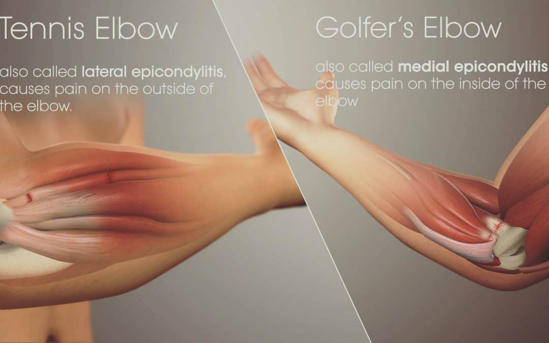 Tennis Elbow – Diagnosing & General advice